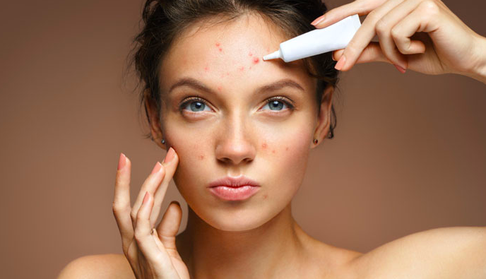girl with skin acne