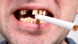 How Does Smoking Affect Your Oral Health?