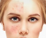 A girls half face is covered with acne and the other half is cured.